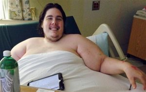 In this Monday, Oct. 12, 2015 photo, Steven Assanti, 33, rests in bed at Kent Hospital in Warwick, R.I. Assanti, of Cranston and who weighs nearly 800 pounds, said he was kicked out of another hospital for ordering pizza. Assanti said he is determined to slim down and hopes to eventually drop to 180 pounds. He said a surgeon read about him and offered to fly him to Texas to help him lose weight so he can have gastric bypass surgery. (AP Photo/Jennifer McDermott)