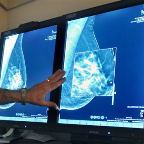 Cancer group's mammogram advice: Start later and getfewer
