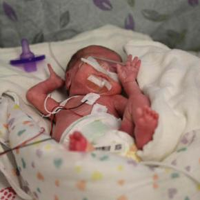 Better preemie pain relief sought amid new call for action