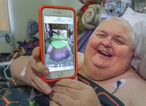 Doctor removes 130-pound tumor from Mississippi man