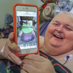 Doctor removes 130-pound tumor from Mississippiman