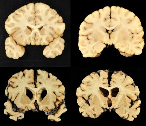 Science Says: How repeated head blows affect thebrain